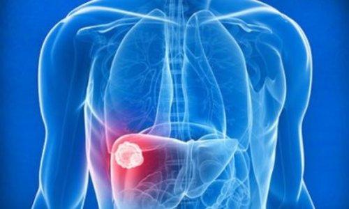 Специалисты обсудили вопросы диагностики и лечения опухолевых поражений печени