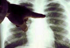 Врачи «поймают» рак легких на ранней стадии