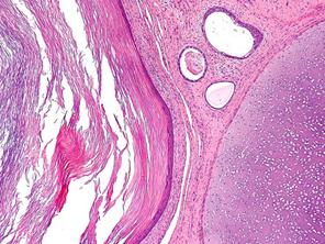 Тератома — причины поражения оргазинма