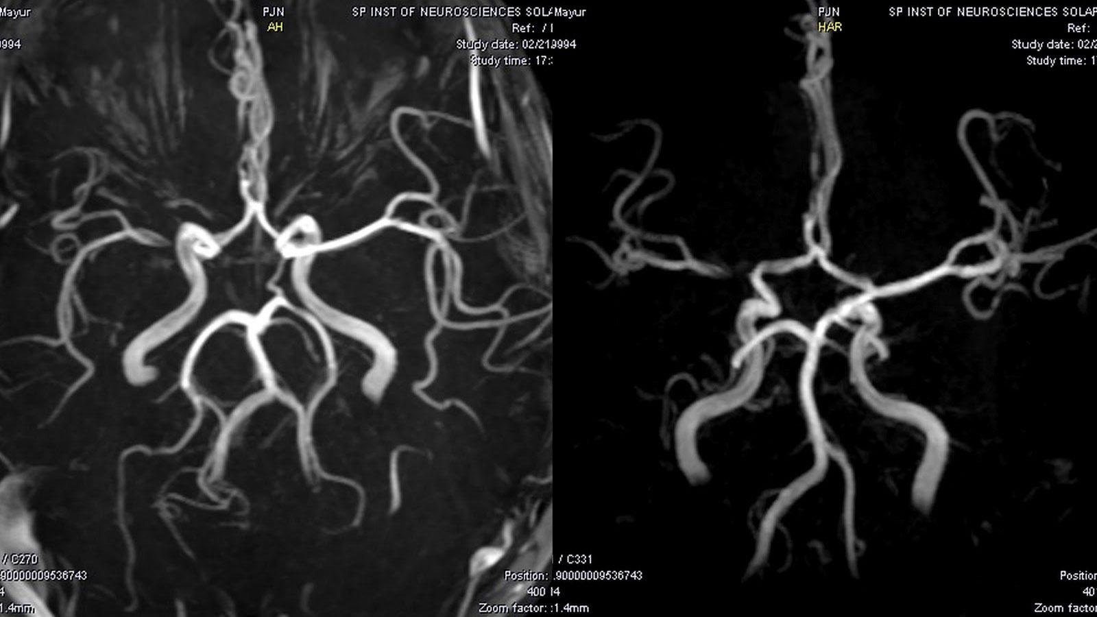 Диагностика расслоения цервикальных артерий: общие рекомендации