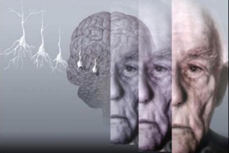 Болезнь Альцгеймера: симптомы, диагностика и лечение