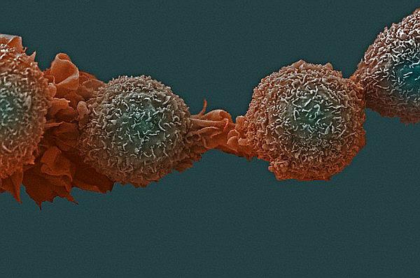 Бедность и богатство могут влиять на риск возникновения того или иного рака