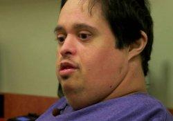 Хирурги удалили опухоль на ноге, весившую 27 кг