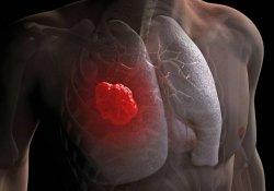 В Великобритании создан метод «сверхранней» диагностики рака легкого
