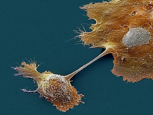 Эндоскоп с датчиком кислорода обнаруживает рак поджелудочной железы