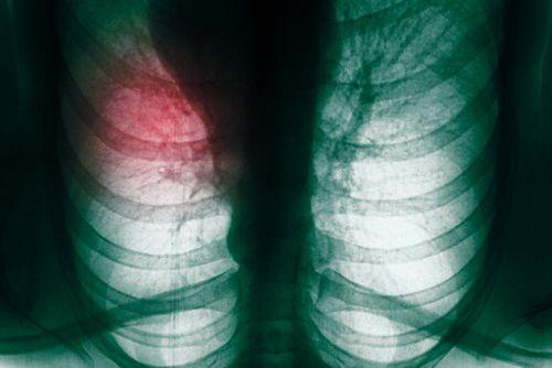Новая методика диагностирования рака легких на ранних этапах