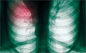 Ученые разработали алкотестер для определения рака легких