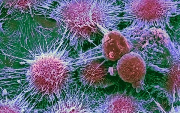 Ученые нашли новые способы диагностики рака желудка
