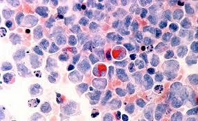 Ген внутри гена способствует развитию острой миелоидной лейкемии