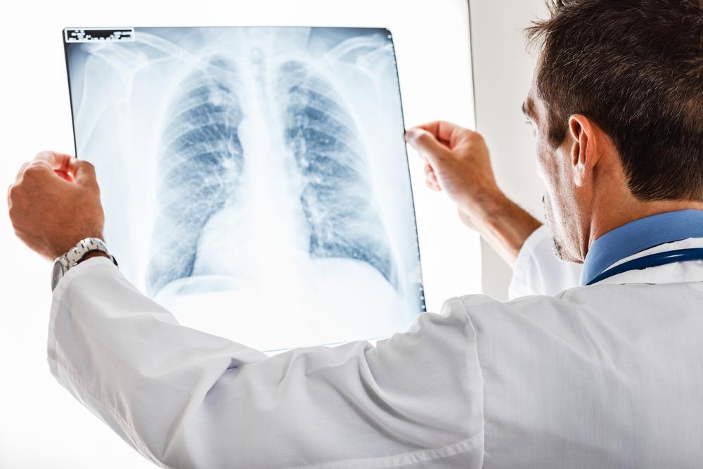 Эксперты рассказали и простом способе предотвращения рака