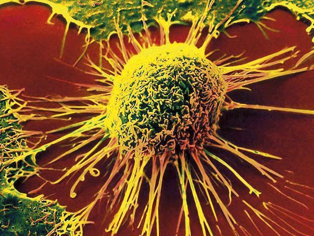 Исследователи нашли способ укорачивать теломеры в опухолевых клетках