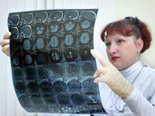 Мир захлестывает эпидемия рака, констатируют врачи