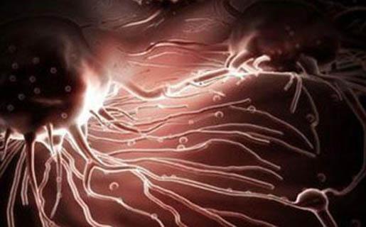 Что такое метастазы: рассказывает врач