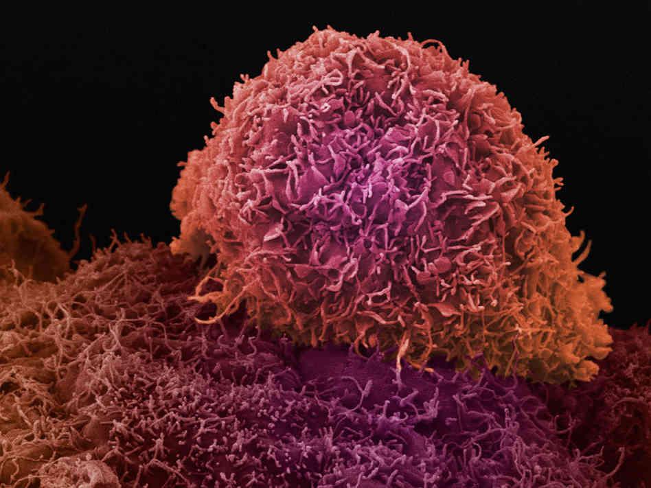 Получены перспективные данные КИ иммунотерапевтического препарата для лечения рака простаты