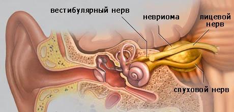 Невринома