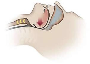 Апноэ сна увеличивает риск рака
