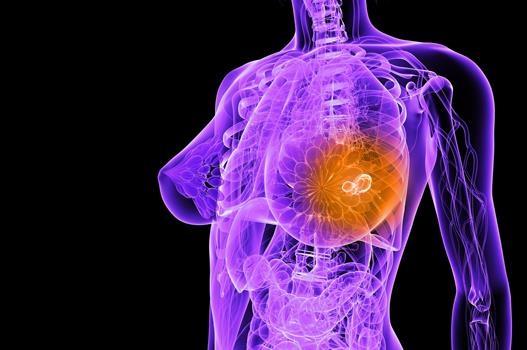 Высокий уровень холестерина увеличивает риск рака груди