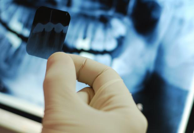 Рентген зубов может стать причиной развития рака мозга