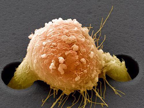12 важнейших рекомендаций против рака