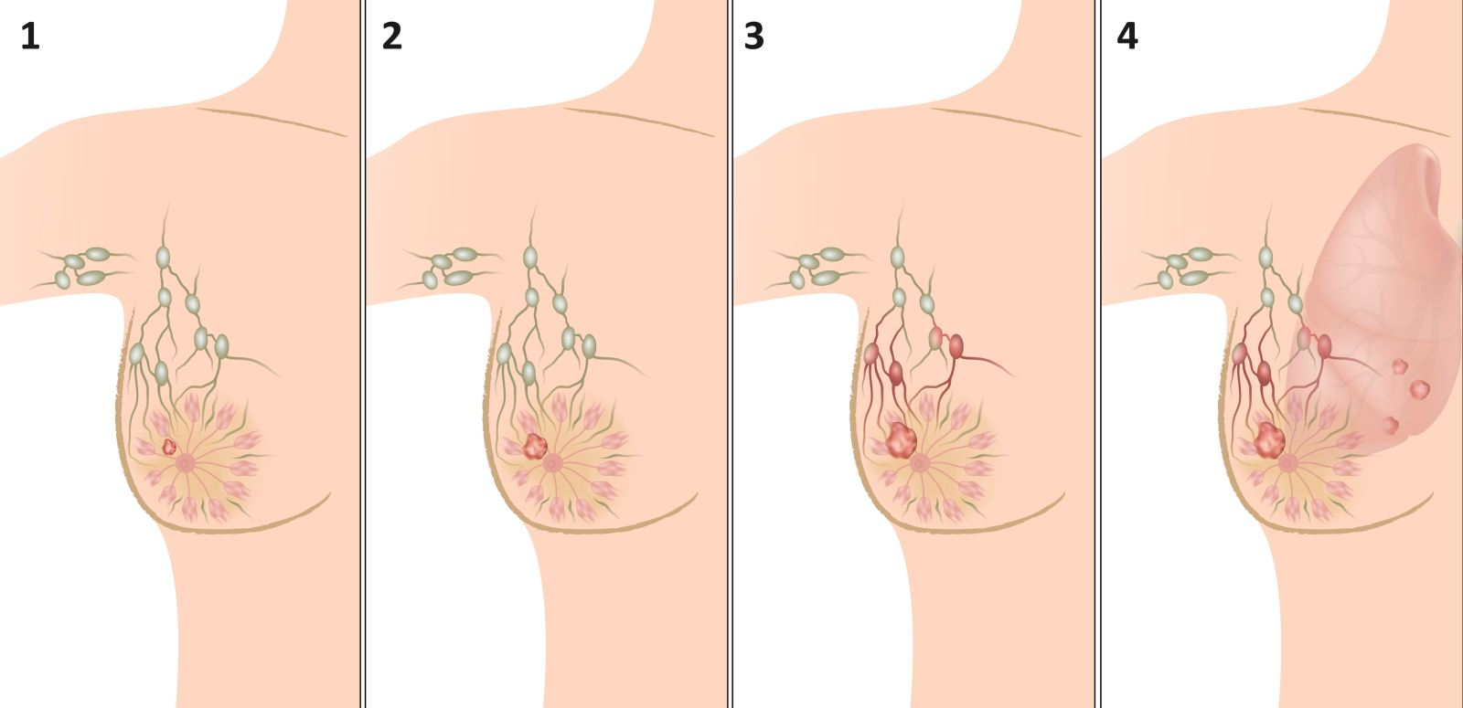Рак молочной железы. Самообследование