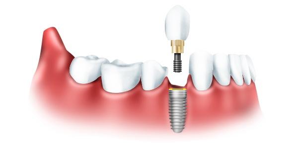 Клиника «Урсула» — лучшие мировые технологии в стоматологии доступны для каждого из вас по оптимальной стоимости