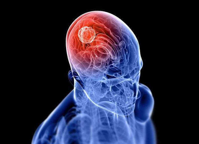 Что такое диагностика опухолей головного мозга