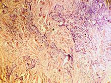 Онкологи узнали, что может убить рак кожи