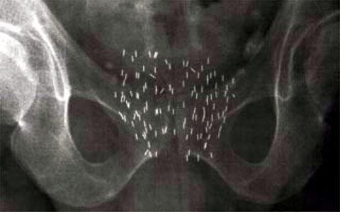 Хирургический способ безопасней для мужчин с раком простаты