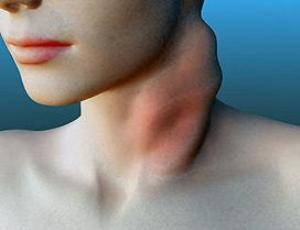 Обнаружен отдаленный кардиотоксический эффект терапии лимфогранулематоза