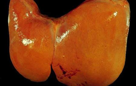 Жировой гепатоз — это серьезно