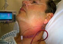Польские хирурги провели уникальную операцию по пересадке гортани больному раком