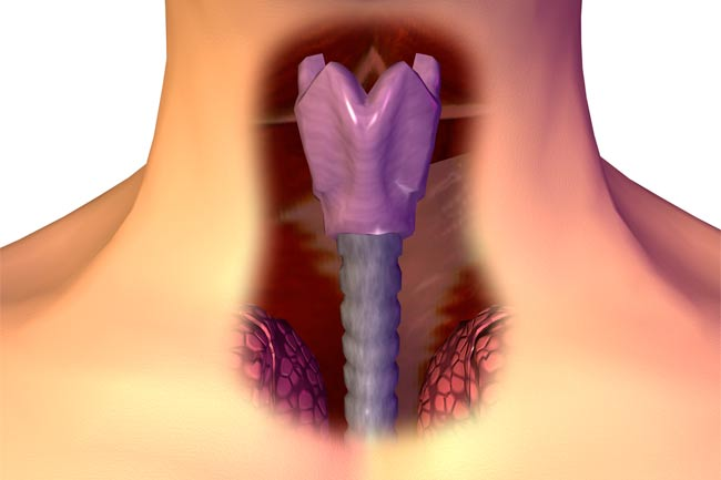 Первые признаки и лечение рака горла