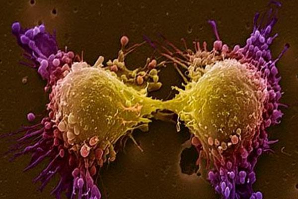 Как жирные кислоты могут бороться с раком простаты