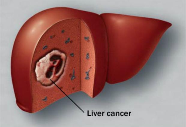 Создан новый метод диагностики рака печени на ранней стадии