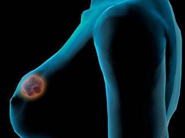 Ученые нашли новый препарат от рака груди