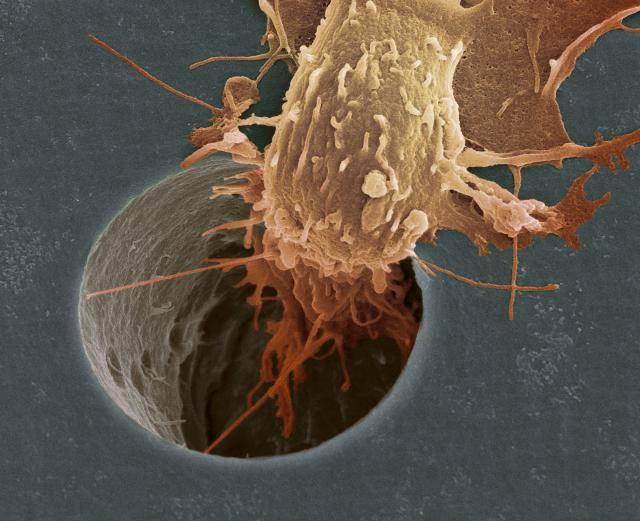 Мифы о питании для раковых больных