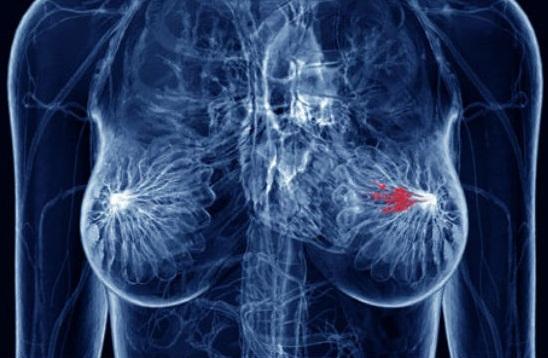 Снимки МРТ могут содержать важную информацию о вероятности рака груди