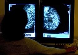 Ученые разрабатывают метод диагностики 4-х видов «женского рака»