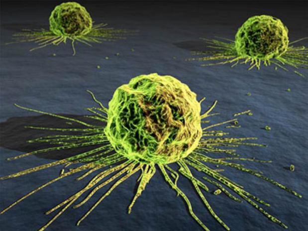 Опухоли яичников: актуальность проблемы злокачественных новообразований