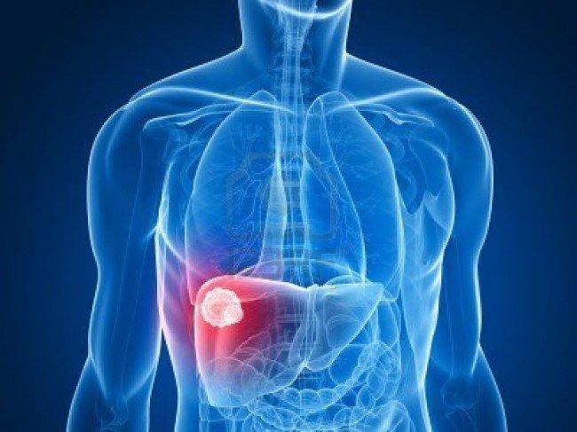 Мужчины чаще болеют раком печени
