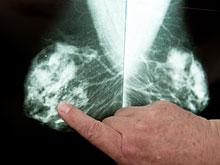 Истончение костей помогает раку быстрее расползаться по телу