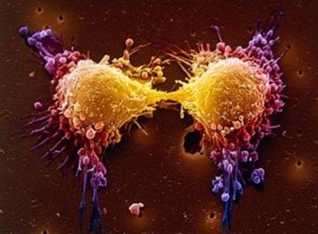 Курение повышает риск развития рака почки