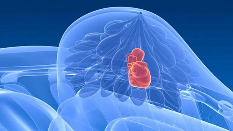 Рак молочной железы хотят победить аутовакциной