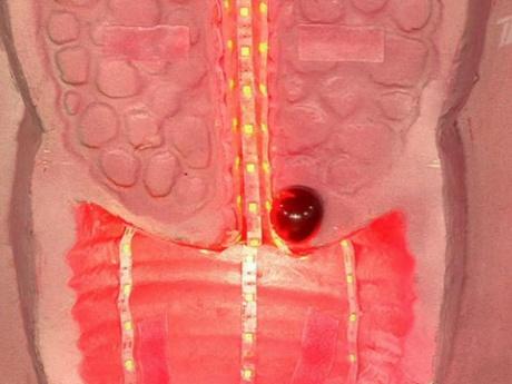 Китайские ученые разрабатывают новый инструмент для диагностики рака шейки матки