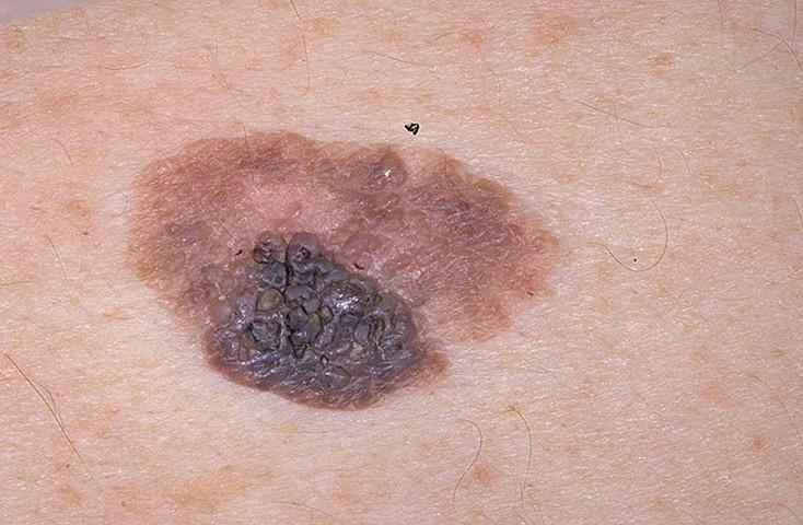 В США тестируют вакцину против рака кожи