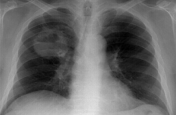 Пять признаков рака: мнение врачей