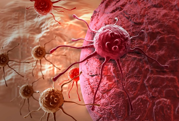 Пять важных советов, которые помогут предотвратить рак