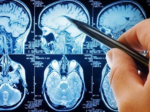 Найдены гены, отвечающие за образование опухолей мозга