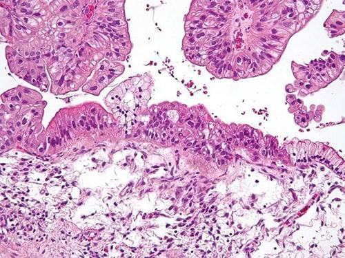 Получены данные о негенетических причинах рака