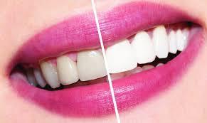Как профессионально отбелить зубы